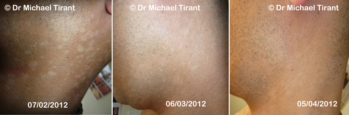 And a week later, I noticed some improvement in my psoriasis 2